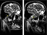 MRI in the temporomandibular joint